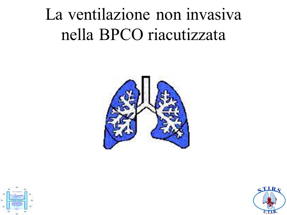 La ventilazione non invasiva nella BPCO riacutizzata