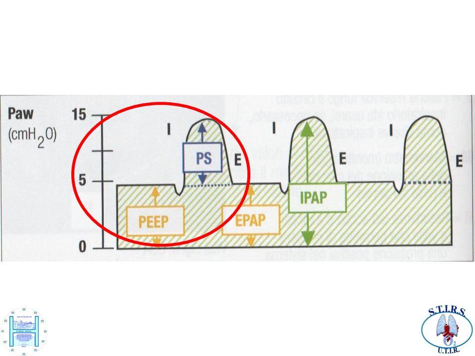 Nel grafico schematizzato in figura, ad un paziente X è stata applicata una PS di 10 cm.