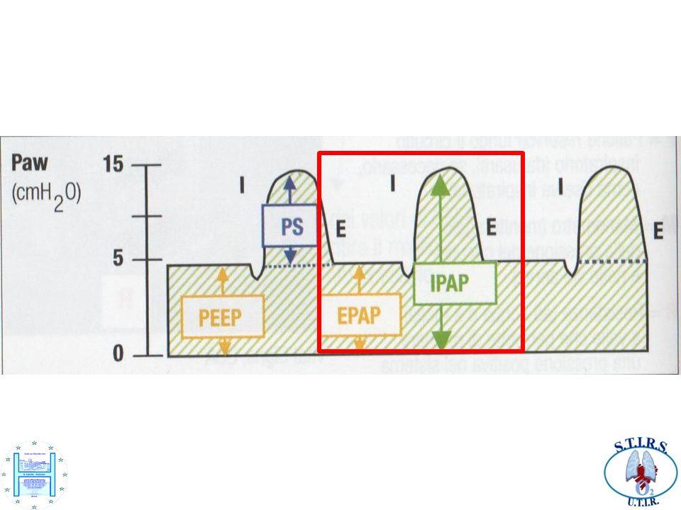 Come si vede da questa diapositiva non sembra che ci siano sostanziali differenze tra la ventilazione in PSV mode e quella definita come BiLevel In realtà delle differenze sostanziali ci sono e sono essenzialmente: Nella PSV mode non si imposta la FR ma solo i parametri della ventilazione di apnea (intervallo di apnea e parametri di ventilazione di apnea che altro non è che una ventilazione controllata a volume); nella BiLevel invece si imposta una ventilazione di BACK-UP (frequenza di BACK-UP che si attiva solo se il paziente non è in grado di iniziare un respiro spontaneo) e un rise time (tempo di salita: il tempo che il ventilatore impiega ad erogare la pressione IPAP prestabilita.