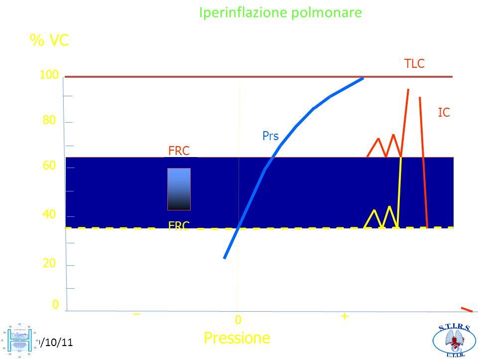 Iperinflazione polmonare