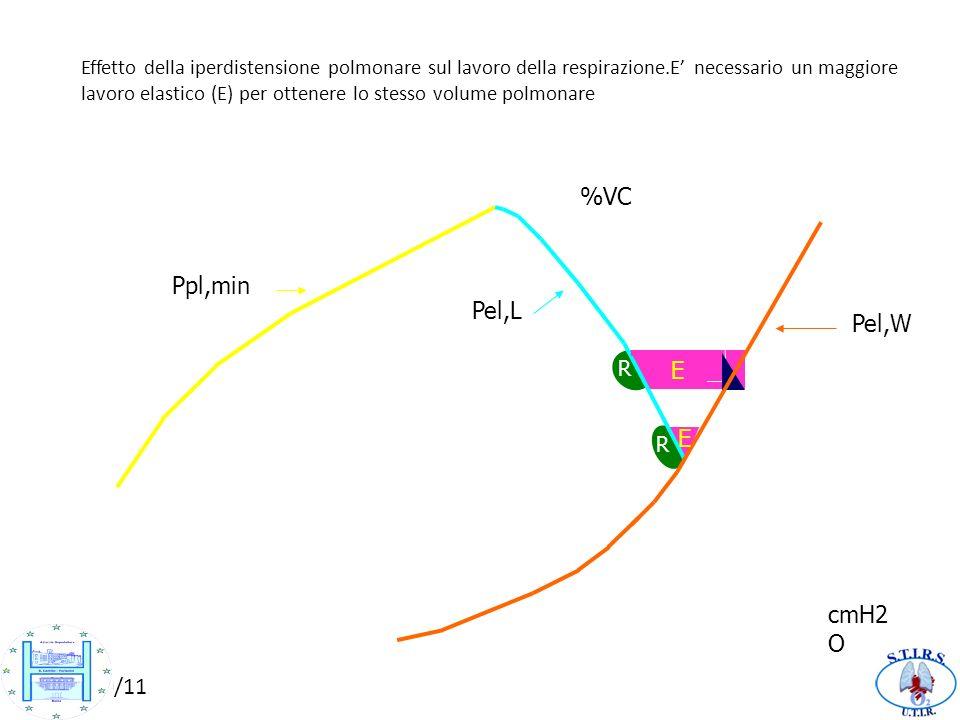 46464646 %VC 100 Ppl,min 80 Pel,L Pel,W E 60 E 40 20 cmH2O -60 -40 -20