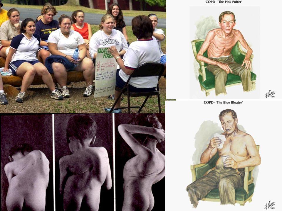 50505050 Tutte le cause di ipercapnia (ipovetilazione e alterazione del V/Q) possono essere sintetizzate in queste foto.