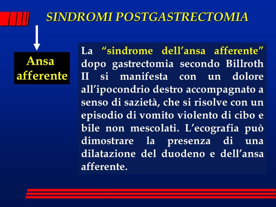 La sindrome dell'ansa afferente dopo gastrectomia secondo Billroth II si manifesta con un dolore all'ipocondrio destro accompagnato a senso di sazietà, che si risolve con un episodio di vomito violento di cibo e bile non mescolati. L'ecografia può dimostrare la presenza di una dilatazione del duodeno e dell'ansa afferente.