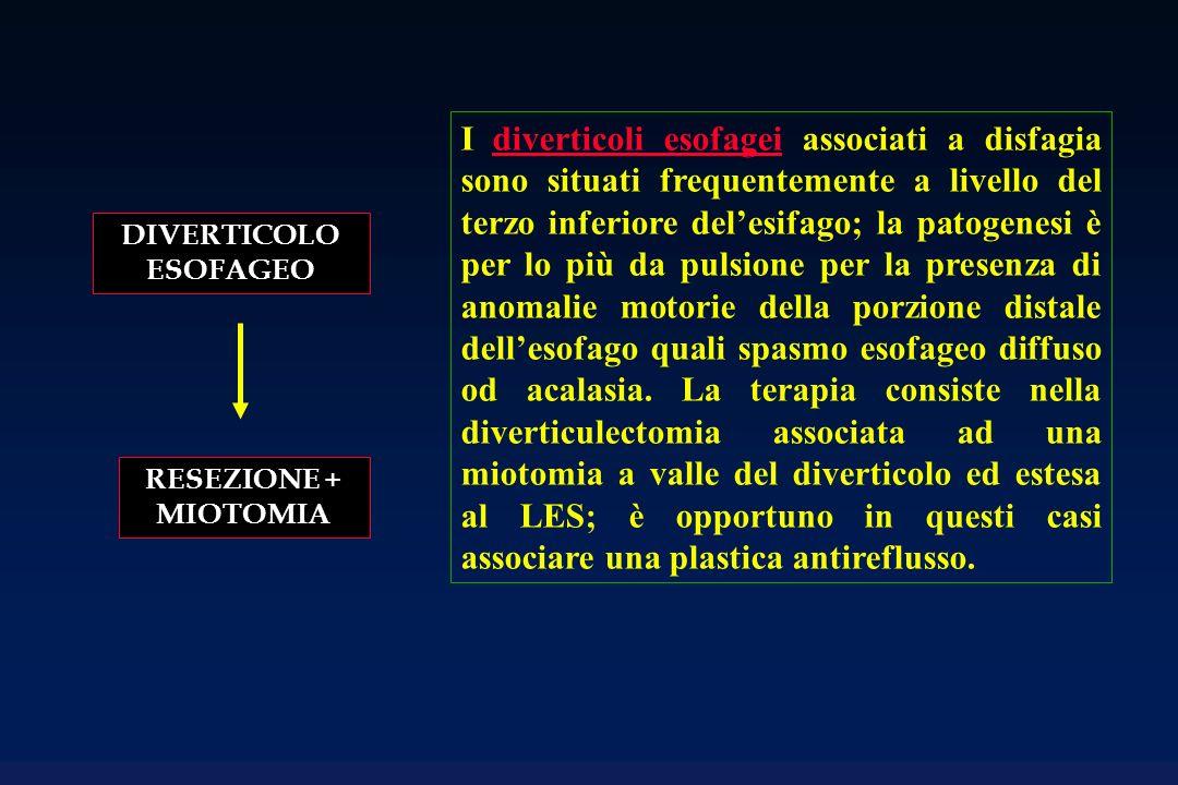 I diverticoli esofagei associati a disfagia sono situati frequentemente a livello del terzo inferiore del'esifago; la patogenesi è per lo più da pulsione per la presenza di anomalie motorie della porzione distale dell'esofago quali spasmo esofageo diffuso od acalasia. La terapia consiste nella diverticulectomia associata ad una miotomia a valle del diverticolo ed estesa al LES; è opportuno in questi casi associare una plastica antireflusso.