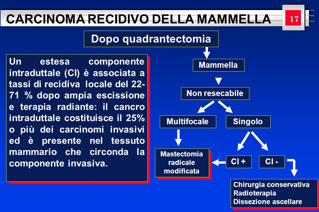 Mastectomia radicale modificata