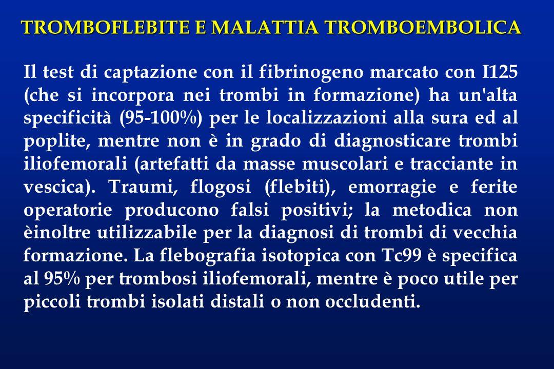 Il test di captazione con il fibrinogeno marcato con I125 (che si incorpora nei trombi in formazione) ha un alta specificità (95-100%) per le localizzazioni alla sura ed al poplite, mentre non è in grado di diagnosticare trombi iliofemorali (artefatti da masse muscolari e tracciante in vescica).
