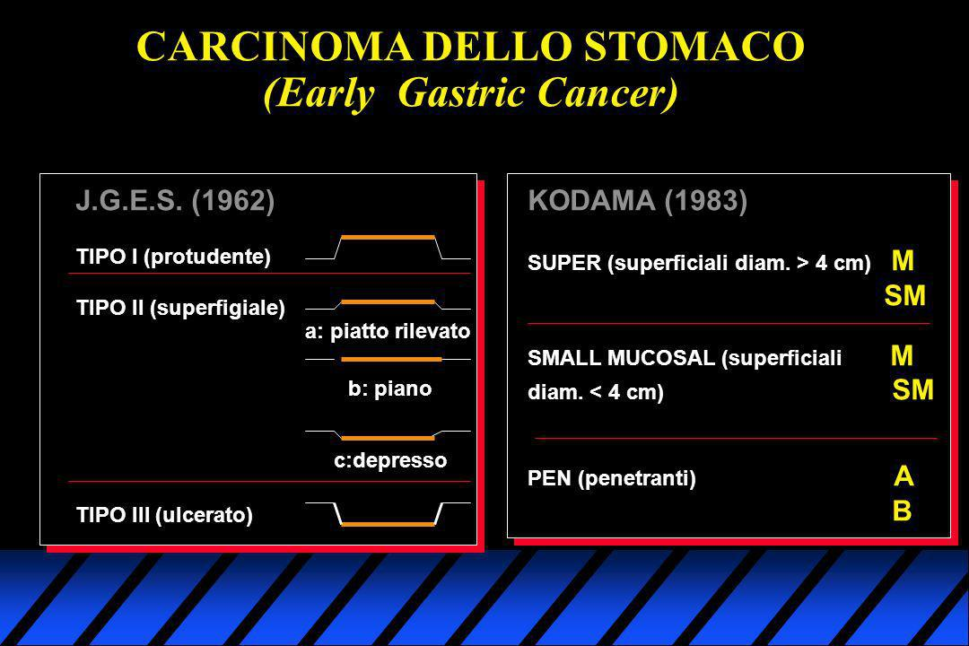 CARCINOMA DELLO STOMACO (Early Gastric Cancer)