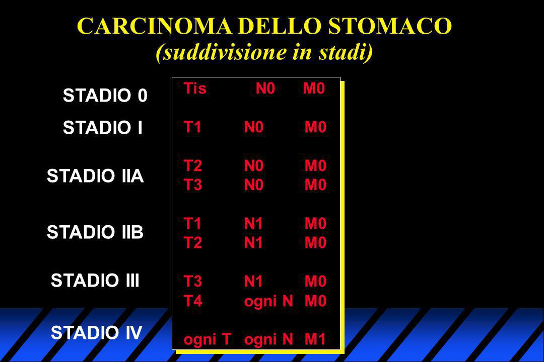 CARCINOMA DELLO STOMACO (suddivisione in stadi)