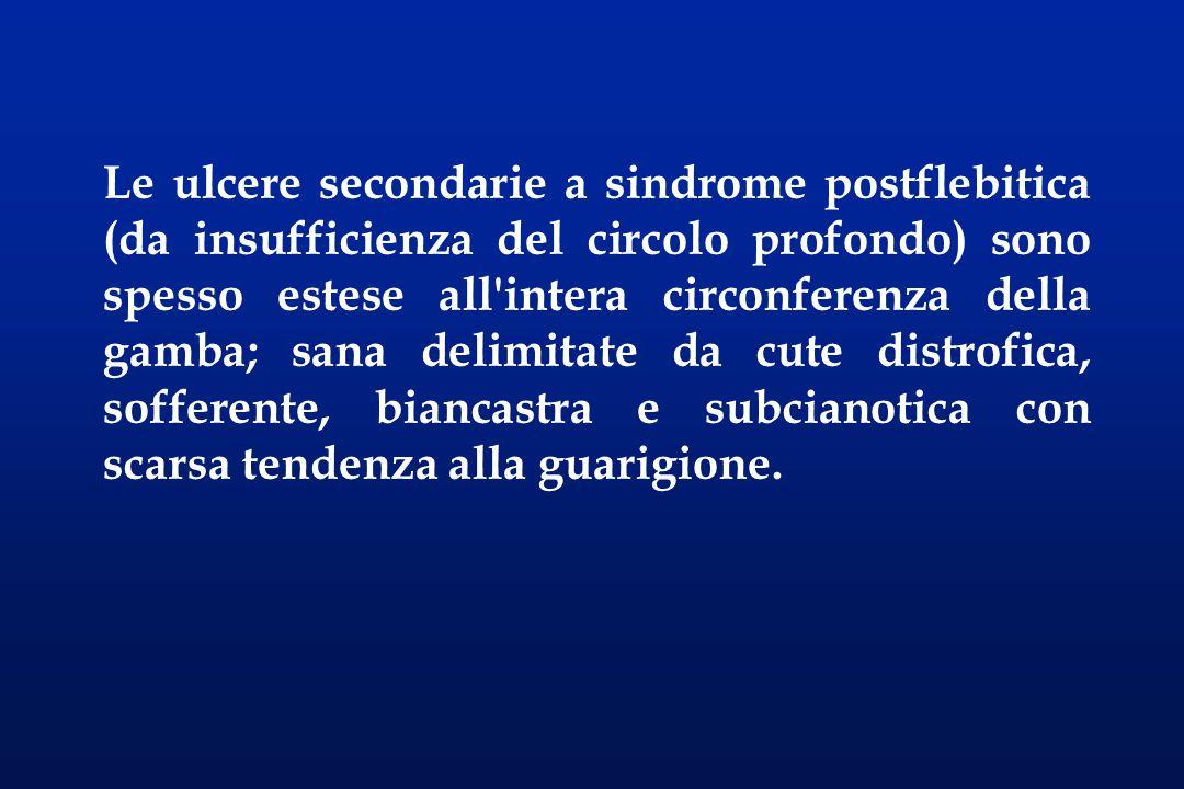 Le ulcere secondarie a sindrome postflebitica (da insufficienza del circolo profondo) sono spesso estese all intera circonferenza della gamba; sana delimitate da cute distrofica, sofferente, biancastra e subcianotica con scarsa tendenza alla guarigione.
