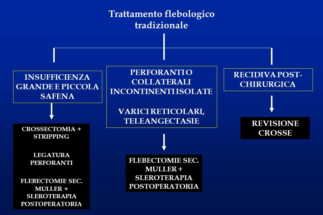 Trattamento flebologico tradizionale