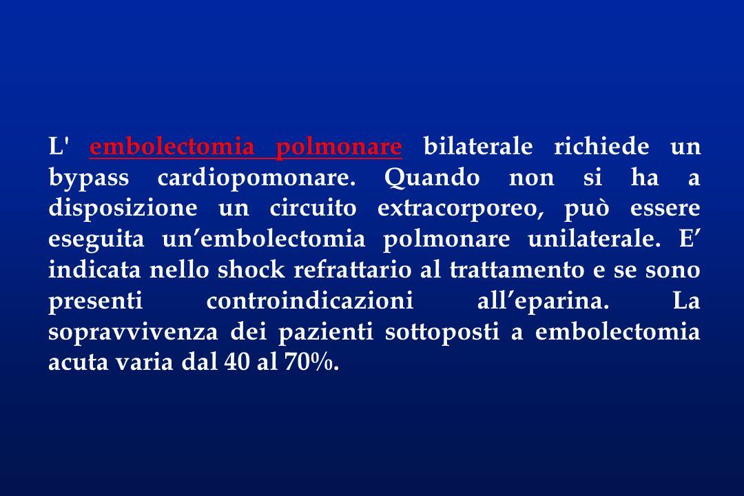 L embolectomia polmonare bilaterale richiede un bypass cardiopomonare