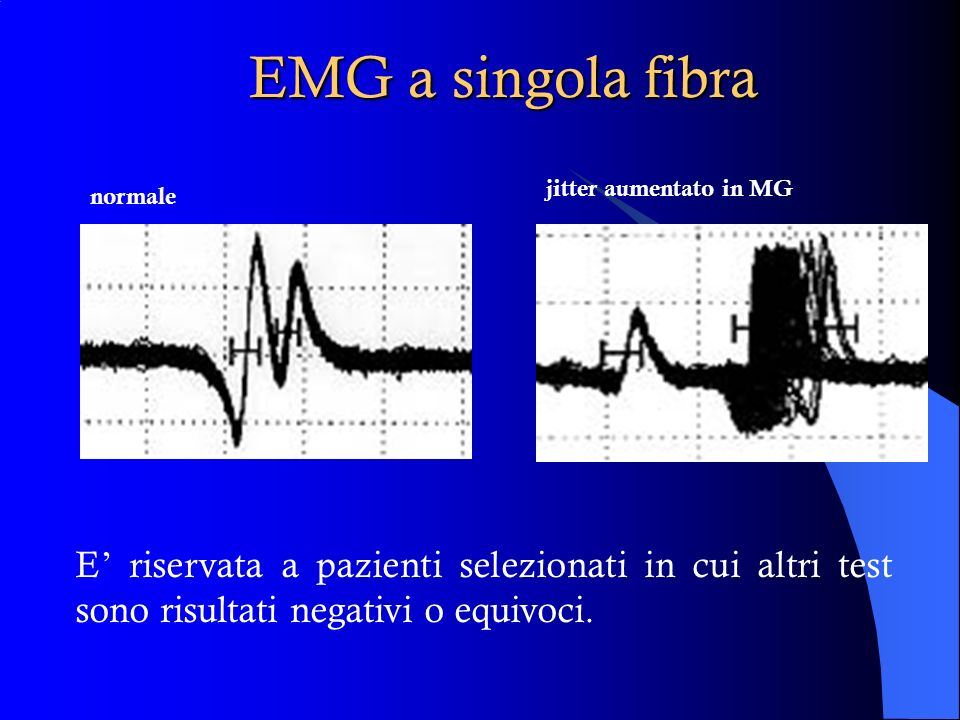 EMG a singola fibra jitter aumentato in MG. normale.