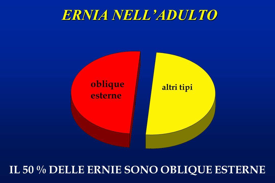 ERNIA NELL'ADULTO IL 50 % DELLE ERNIE SONO OBLIQUE ESTERNE