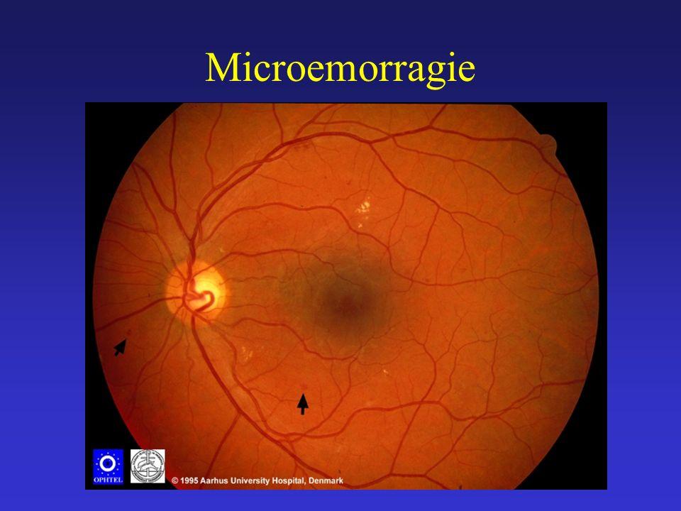 Microemorragie Retinal Haemorrhages