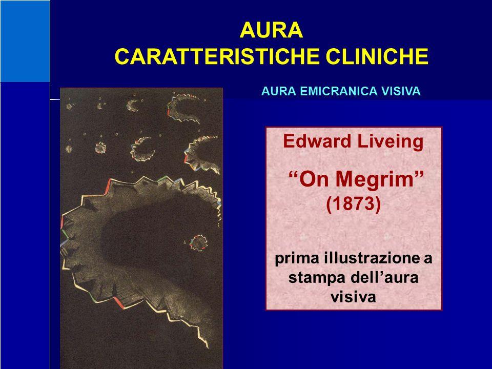 CARATTERISTICHE CLINICHE prima illustrazione a stampa dell'aura visiva