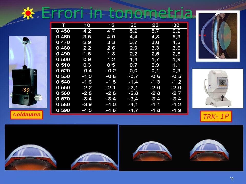 Errori in tonometria Goldmann TRK- 1P
