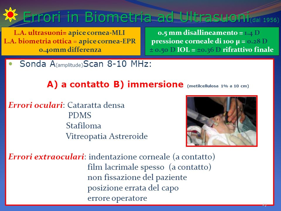 Errori in Biometria ad Ultrasuoni(dal 1956)