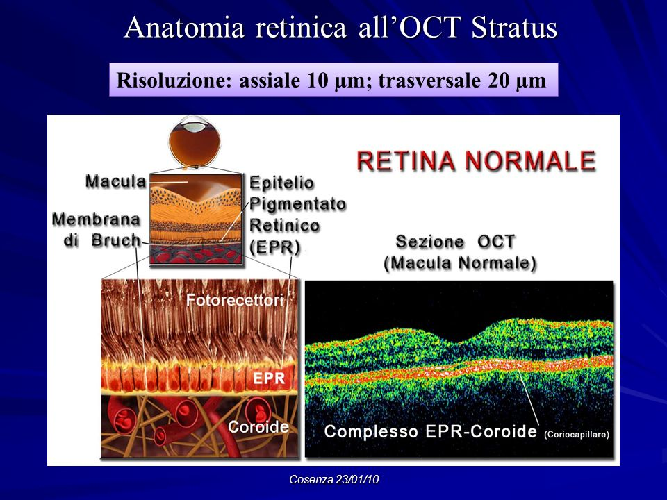 Anatomia retinica all'OCT Stratus