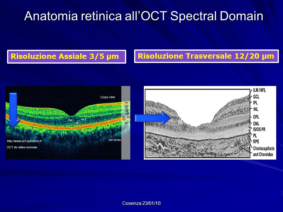 Anatomia retinica all'OCT Spectral Domain
