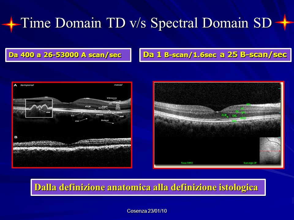 Time Domain TD v/s Spectral Domain SD