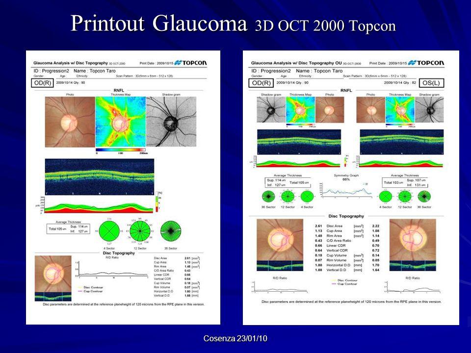Printout Glaucoma 3D OCT 2000 Topcon