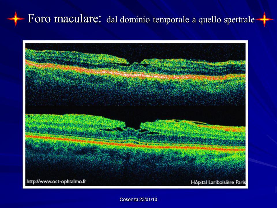 Foro maculare: dal dominio temporale a quello spettrale
