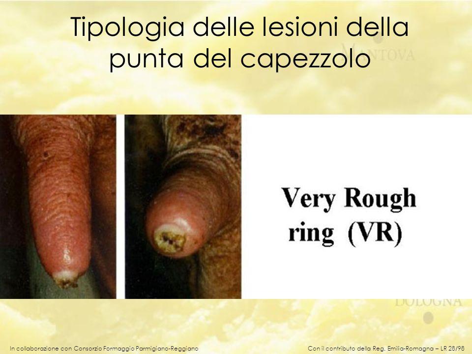 Tipologia delle lesioni della punta del capezzolo