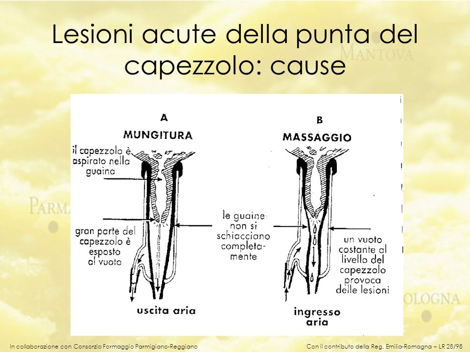 Lesioni acute della punta del capezzolo: cause
