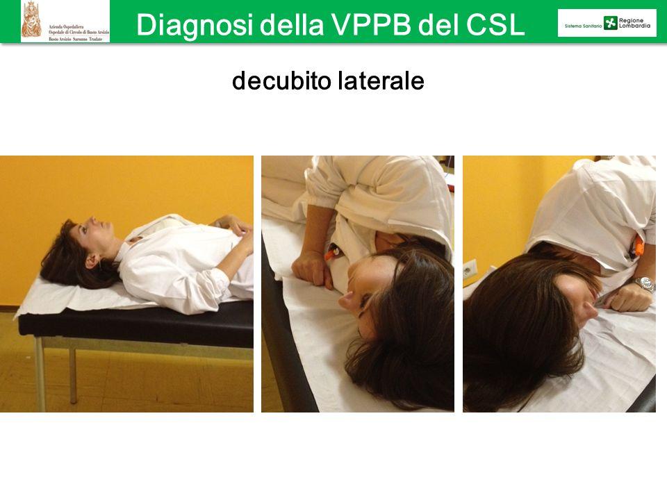 Diagnosi della VPPB del CSL