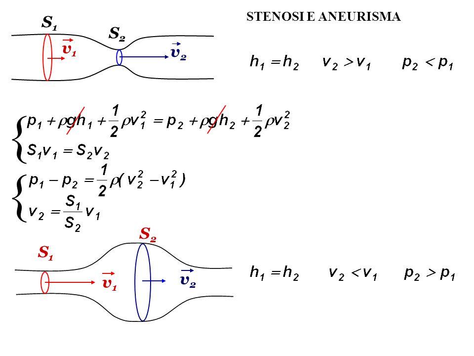 STENOSI E ANEURISMA S1 S2 v1 v2 { { S2 S1 v2 v1
