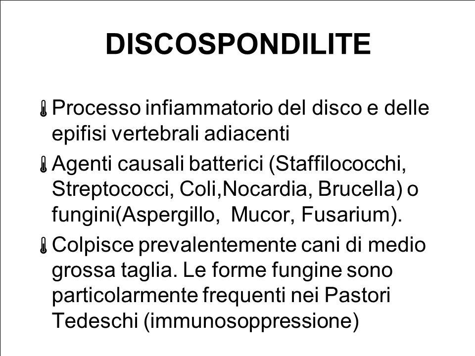 DISCOSPONDILITE Processo infiammatorio del disco e delle epifisi vertebrali adiacenti.