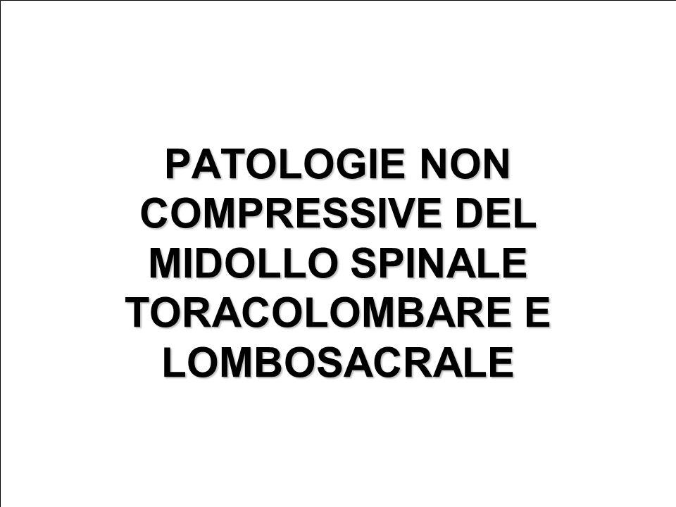 PATOLOGIE NON COMPRESSIVE DEL MIDOLLO SPINALE TORACOLOMBARE E LOMBOSACRALE