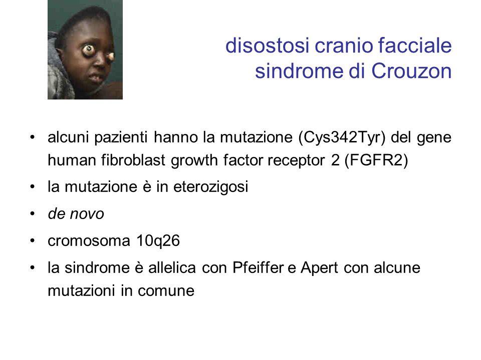 disostosi cranio facciale sindrome di Crouzon
