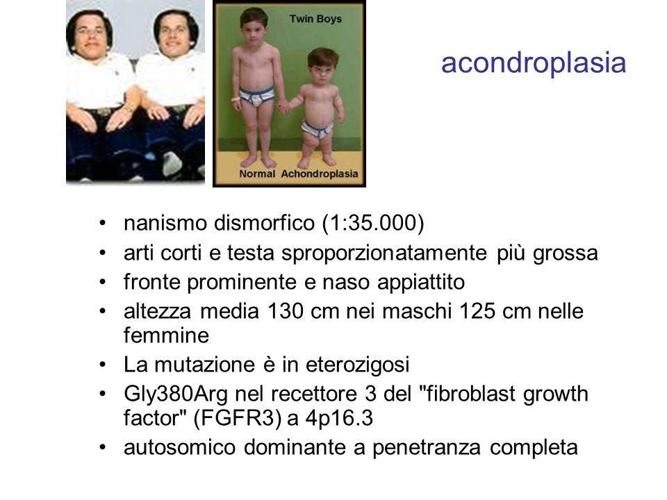 acondroplasia nanismo dismorfico (1:35.000)