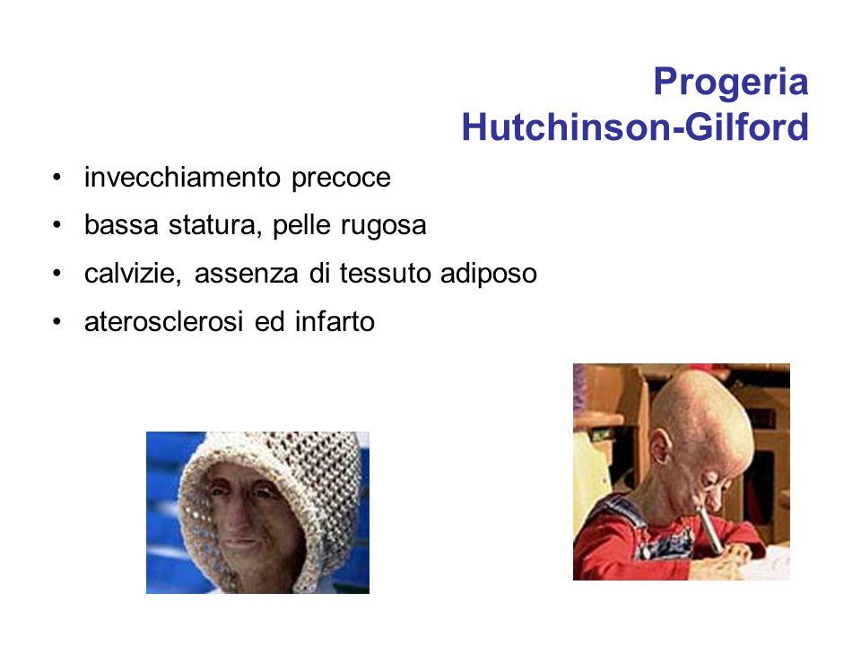 Progeria Hutchinson-Gilford