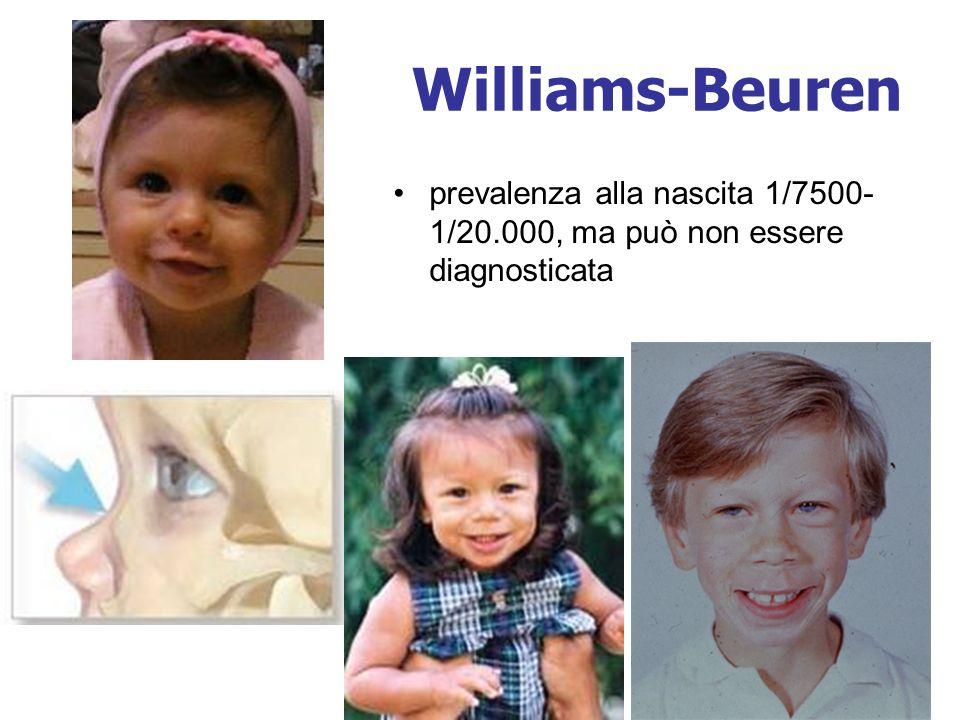 Williams-Beuren prevalenza alla nascita 1/7500-1/20.000, ma può non essere diagnosticata