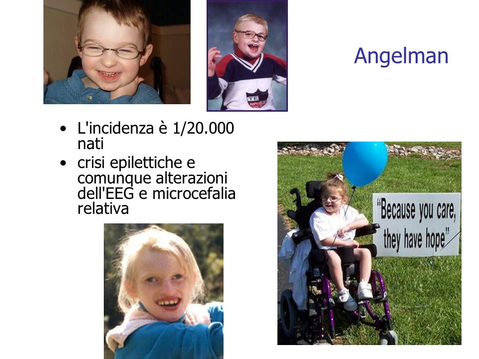 Angelman L incidenza è 1/20.000 nati