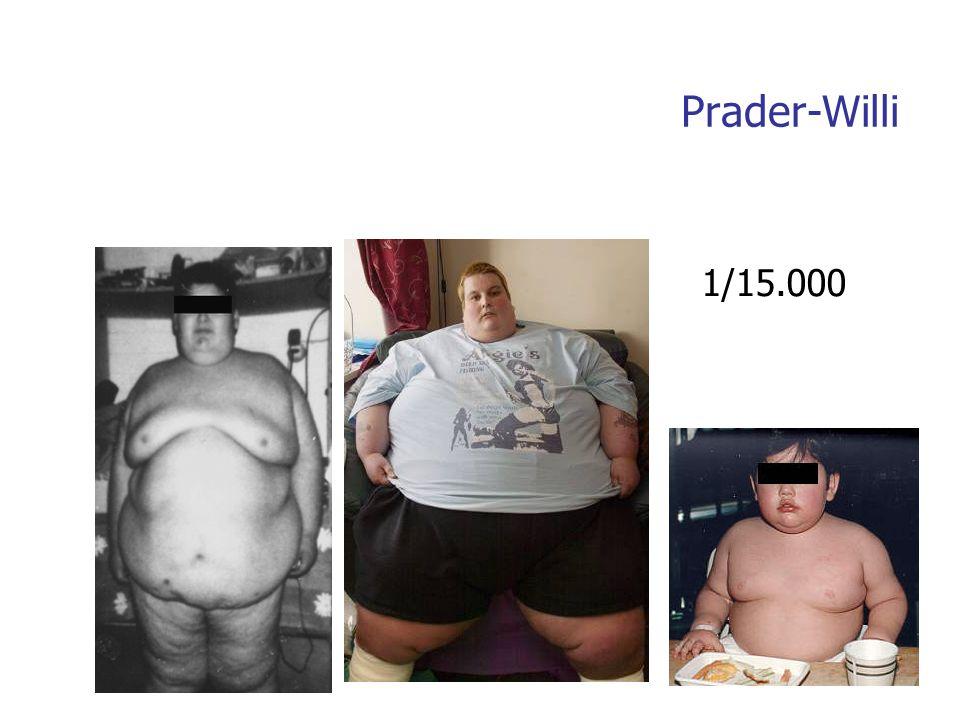 Prader-Willi 1/15.000