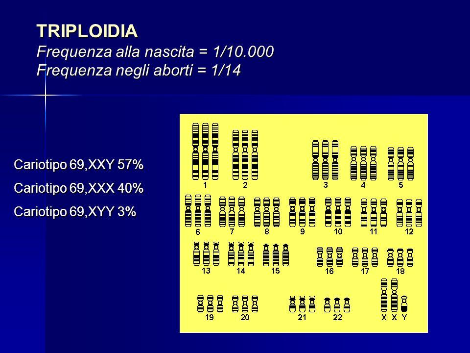 TRIPLOIDIA Frequenza alla nascita = 1/10.000