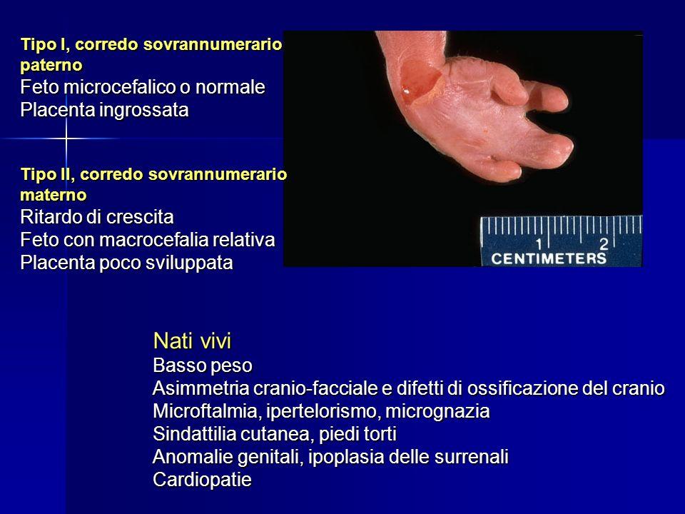 Nati vivi Feto microcefalico o normale Placenta ingrossata