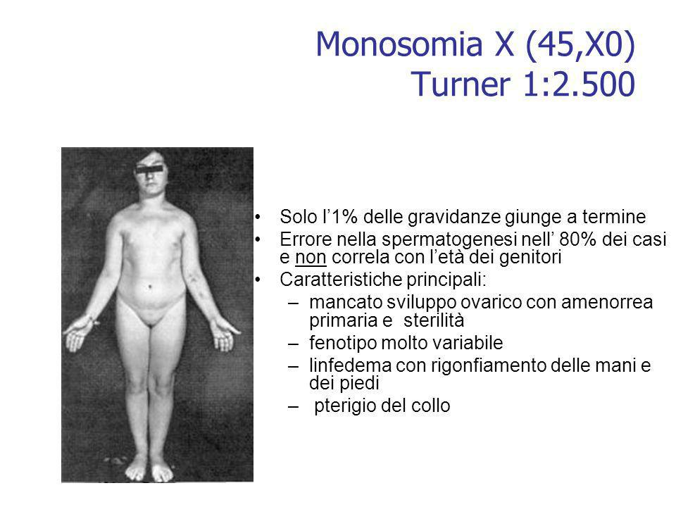 Monosomia X (45,X0) Turner 1:2.500