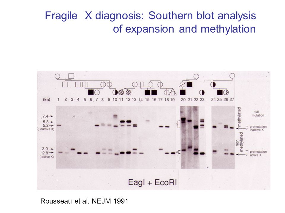 Fragile X diagnosis: Southern blot analysis of expansion and methylation