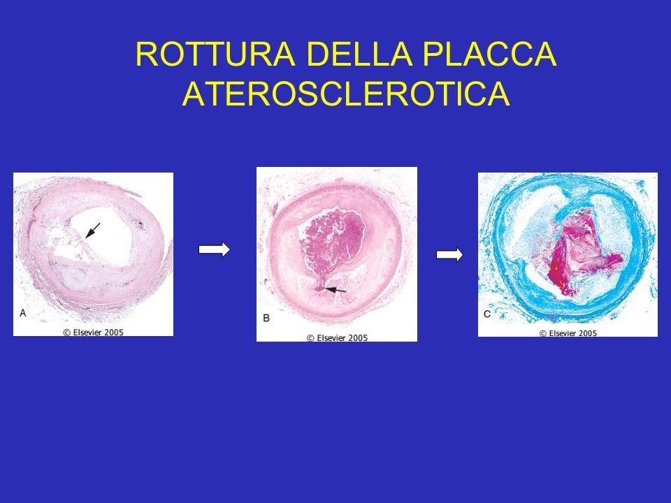 ROTTURA DELLA PLACCA ATEROSCLEROTICA