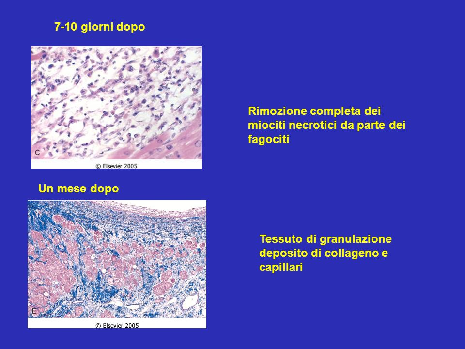 7-10 giorni dopo Rimozione completa dei miociti necrotici da parte dei fagociti. Un mese dopo.