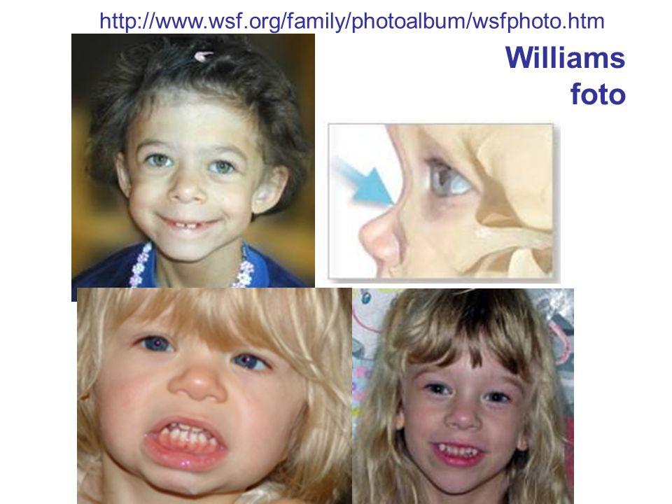 http://www.wsf.org/family/photoalbum/wsfphoto.htm Williams foto