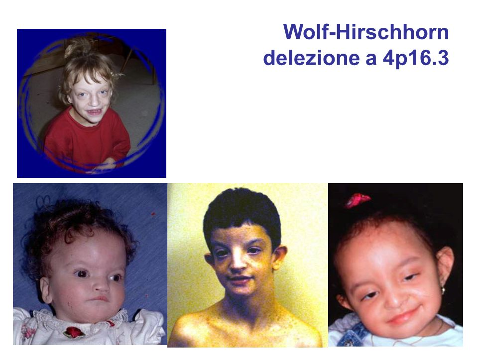 Wolf-Hirschhorn delezione a 4p16.3
