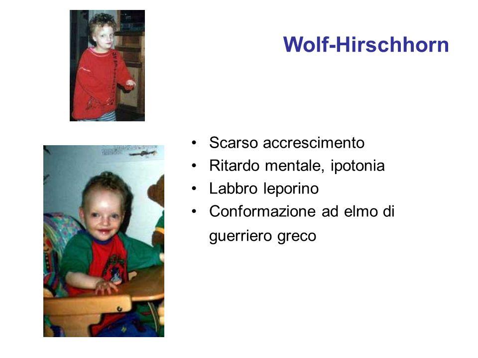 Wolf-Hirschhorn Scarso accrescimento Ritardo mentale, ipotonia