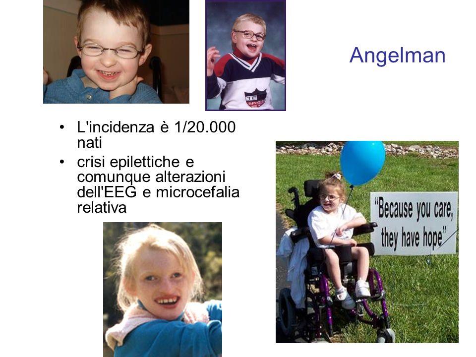 Angelman L incidenza è 1/20.000 nati