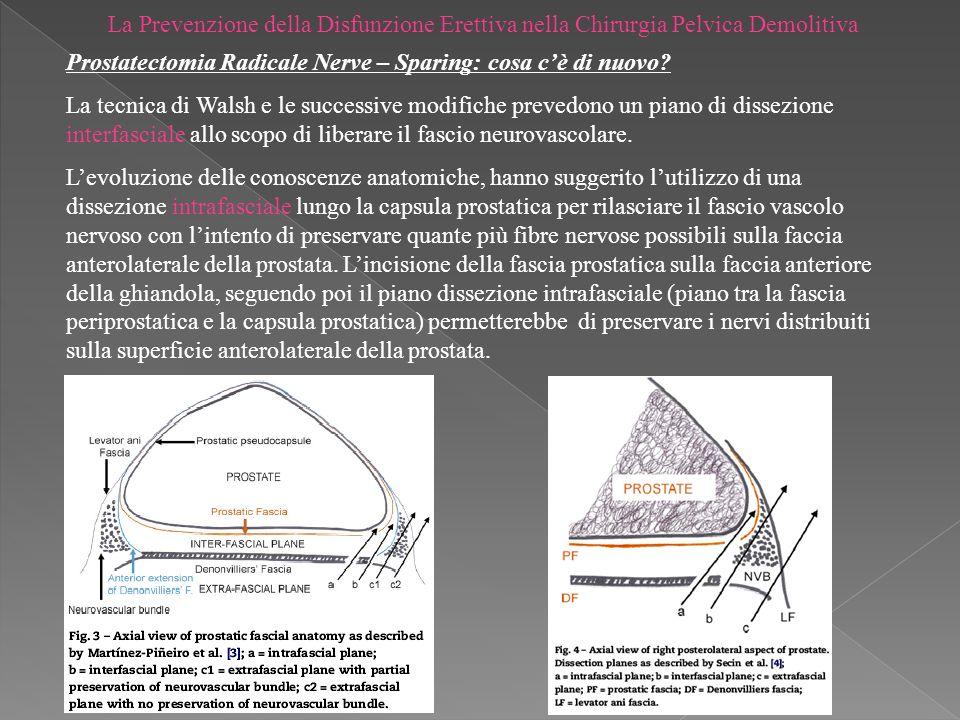 La Prevenzione della Disfunzione Erettiva nella Chirurgia Pelvica Demolitiva