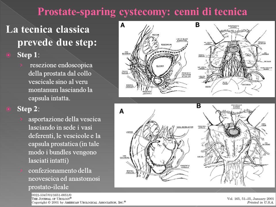 Prostate-sparing cystecomy: cenni di tecnica